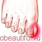 Профилактика вросшего ногтя – инструкция профилактики вросшего ногтя